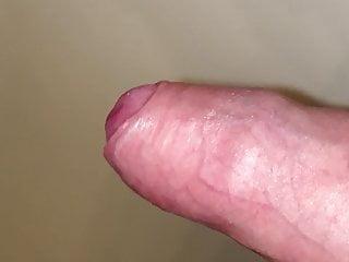 پوست ختنه عقبگرد